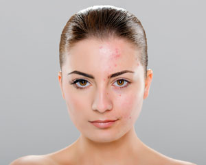 Image of woman with acne